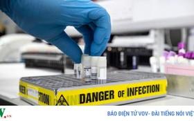 CDC (Mỹ) công bố thêm 6 triệu chứng của bệnh Covid-19 nguy hiểm