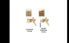 Đau cột sống do xẹp đốt sống loãng xương - triệu chứng không được chủ quan