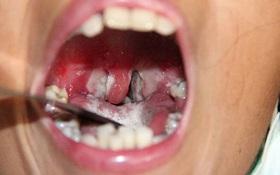 1 người tử vong do bệnh bạch hầu ở Đắk Nông: Hướng dẫn nhận biết dấu hiệu bất thường vùng hầu họng