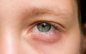 Sức khỏe của bạn được tiết lộ qua những dấu hiệu bất thường trên mặt
