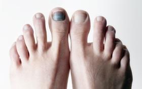 Đen móng chân do chạy bộ: Nguyên nhân và cách khắc phục