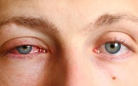 Điểm danh 5 bệnh mùa thu thường gặp và cách phòng tránh