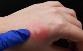 Mẩn ngứa nổi cục như muỗi đốt là bệnh gì? Dấu hiệu không nên xem thường khi chuyển mùa