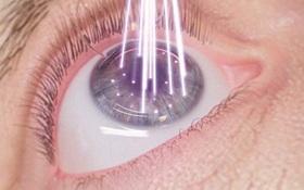 Bệnh nhân cần kiêng gì sau mổ cận thị?