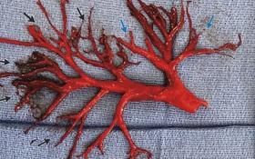 4 loại thực phẩm tự nhiên giúp làm loãng máu, ngăn ngừa cục máu đông gây đột quỵ