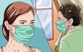 Bệnh nhân cần làm gì để phòng tránh lây nhiễm ra cộng đồng khi bị thủy đậu?