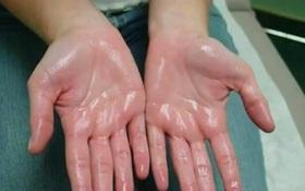 Nguyên nhân ra mồ hôi tay và 12 cách chữa mồ hôi tay hiệu quả