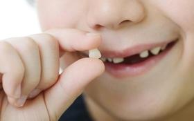 Tự nhổ răng sữa tại nhà, răng bé gái 8 tuổi bị rơi vào phổi dẫn tới viêm phổi nặng