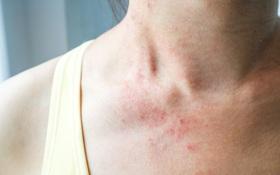 Dị ứng đang vào mùa, cần phân biệt với triệu chứng COVID-19