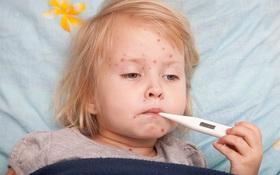 Rubella bị sốt phải làm sao? Bà bầu sốt do rubella cần làm gì để hạ?