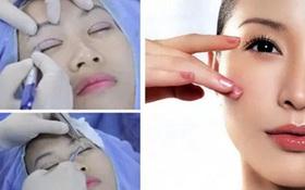 Nhấn mí mắt giữ được bao lâu? Điểm danh 5 yếu tố ảnh hưởng đến việc duy trì nếp mí
