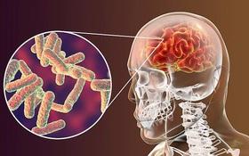 Nguy hiểm biến chứng não do bệnh Rubella và những thông tin quan trọng