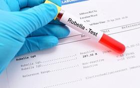 Phụ nữ có thai cần làm gì khi phát hiện Rubella IgG dương tính?