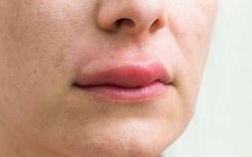 """Sau """"nấm đen"""", Ấn Độ báo động nguy cơ nhiễm """"nấm trắng"""" ở bệnh nhân COVID-19"""