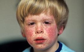 Tìm hiểu 4 yếu tố làm tăng nguy cơ mắc bệnh Rubella bạn cần biết
