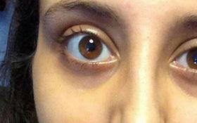 Làm sao để mắt cận hết lồi? Những cách khiến mắt hết lồi khi bị cận thị