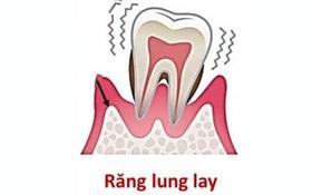 Răng vĩnh viễn bị lung lay: Nguyên nhân và biện pháp khắc phục