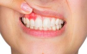 Tụt nướu răng là gì? Gợi ý cách trị tụt nướu răng tại nhà hiệu quả