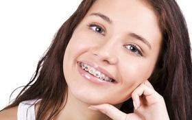 Giải thích nguyên nhân niềng răng bị hóp má và cách khắc phục