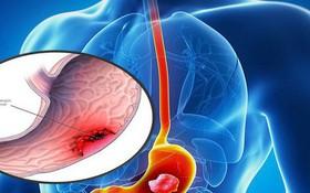 Người bị ung thư dạ dày có chữa được không?