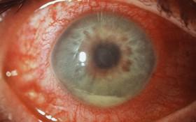 Hỏng mắt do bị viêm họng?