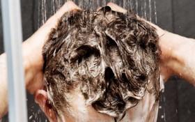 Gội đầu sai cách khiến tóc không những nhiều gàu mà còn nhanh