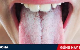 Cách vệ sinh lưỡi khi đánh răng như thế nào là đúng cách?