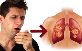 Ho trong ung thư phổi và ho do cảm lạnh khác nhau như thế nào?