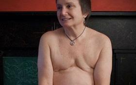 Khi nào thì bệnh nhân ung thư vú phải phẫu thuật cắt bỏ ngực?