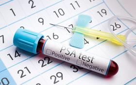 Tìm hiểu về xét nghiệm PSA tầm soát ung thư tuyến tiền liệt
