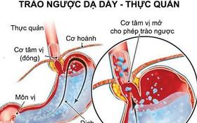 Biểu hiện của bệnh trào ngược dạ dày và cách điều trị