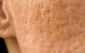 Trị sẹo rỗ cực đơn giản chỉ bằng rau má và vitamin E