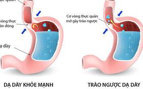 Điểm mặt 5 câu hỏi thường gặp về bệnh trào ngược dạ dày thực quản