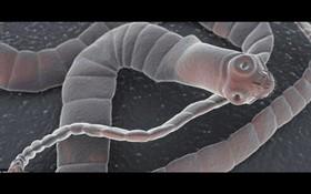 Những bệnh ký sinh trùng thường gặp (2)