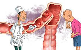 Những yếu tố nguy cơ ung thư đại trực tràng cần biết để chủ động phòng ngừa