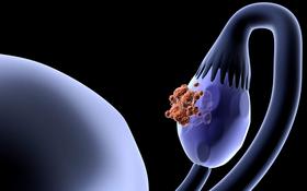 Ung thư buồng trứng là gì? Không phải ai cũng hiểu rõ về câu trả lời và những điều sau đây về ung thư buồng trứng