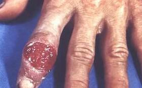Bạn đã biết khám bệnh giang mai ở đâu an toàn mà hiệu quả chưa?