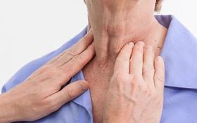 Ung thư tuyến giáp là gì? Nguyên nhân, dấu hiệu, phương pháp điều trị
