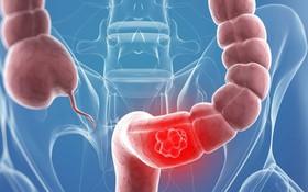 Bệnh ung thư đại tràng là gì? Các giai đoạn của bệnh