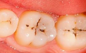 10 Dấu hiệu sâu răng dễ nhận biết và cách điều trị dứt điểm