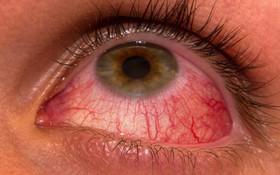 Tìm hiểu các dấu hiệu của viêm màng bồ đào