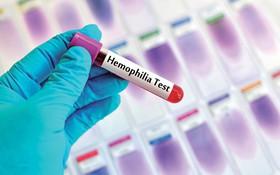 Nguyên nhân bệnh máu khó đông là do đột biến gen?