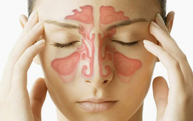 Viêm xoang là gì? Triệu chứng, nguyên nhân, biến chứng và cách điều trị