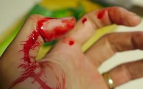 Bệnh máu khó đông là gì? Nguyên nhân và triệu chứng dễ nhận thấy của căn bệnh nguy hiểm