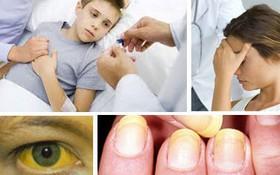 Các dấu hiệu viêm gan B cần biết