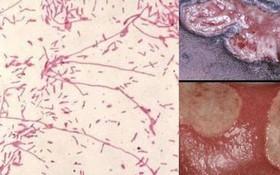 Những nguyên nhân gây bệnh hạ cam ở nam giới
