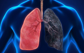 Các câu hỏi thường gặp về bệnh phổi tắc nghẽn mãn tính (COPD)