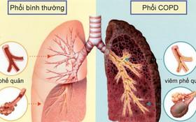 Bệnh phổi tắc nghẽn mãn tính là gì? Dấu hiệu, nguyên nhân, biến chứng và phương pháp điều trị