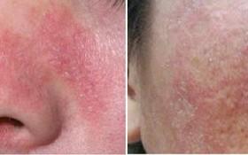 Tham khảo các loại thuốc chữa viêm da tiết bã và lưu ý khi sử dụng