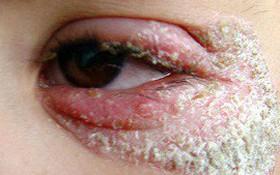 Cách chữa viêm da tiết bã ở mặt hiệu quả, không tái phát